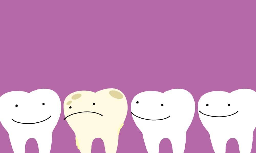 bitesize-pediatric-dentistry-blog