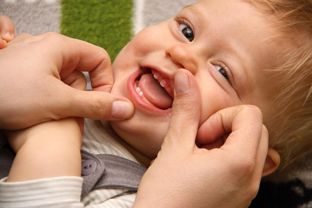 babys-first-dental-visit